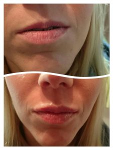 lips - before and after procedure