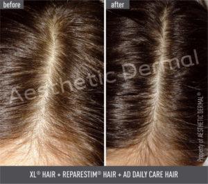 Vypadávanie vlasov, pred a po absolvovaní vlasovej mezoterapie